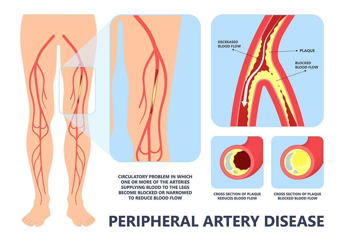 eco-doppler-arterie-arti-inferiori-BOX2-